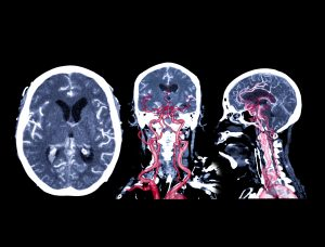 Collection of CT angiography of the brain or CTA brain comparison Axial , Coronal and Sagittal view 2D and 3D Rendering image fusion . medical technology concept.