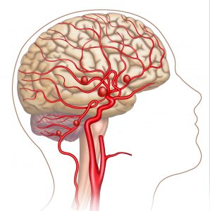Schematic and descriptive illustration of the aneurysm in the human brain