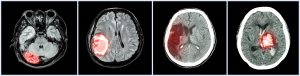 Collection CT scan of brain and multiple disease